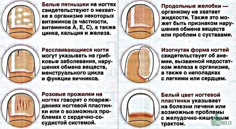 http://img.fitnes.lv/2/health_28038759.jpg
